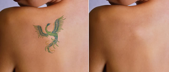 Removal of colored tattoo with laser